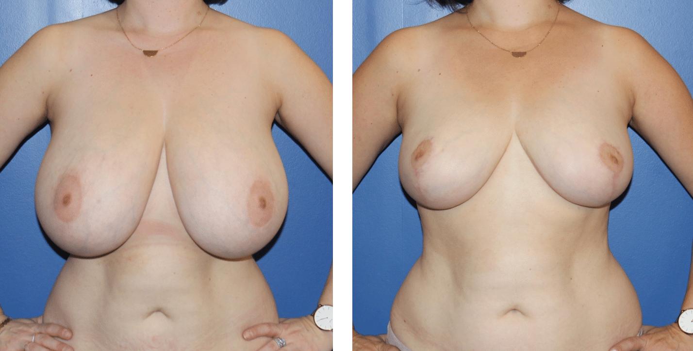Réduction mammaire paris