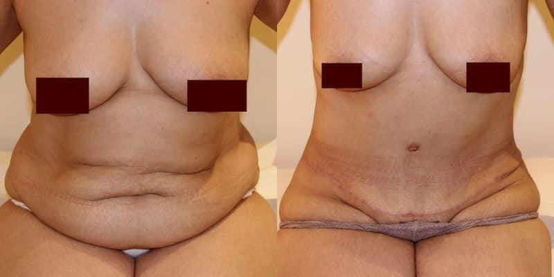 Lifting de l'abdomen femmes