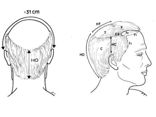 figure2-reduction-tonsure