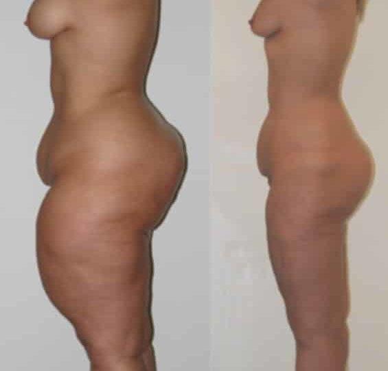 liposuccion ventre , cuisses et mollets : avant et après