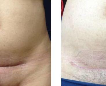 reprise de cicatrice de césarienne