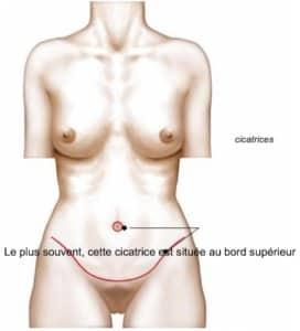 Abdominoplastie - Explication
