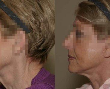 radiofrequence du cou et des bajoues afin de lisser la peau