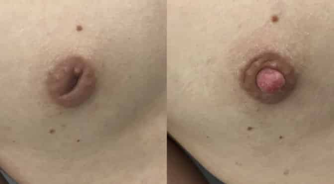 mamelons ombiliques