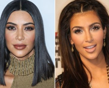 kim kardashian acide hyaluronique