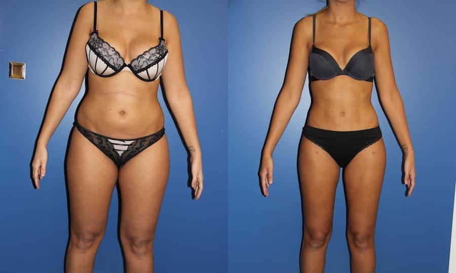 photos-chirurgie-esthetique-paris-corps-cuisses-genoux-1