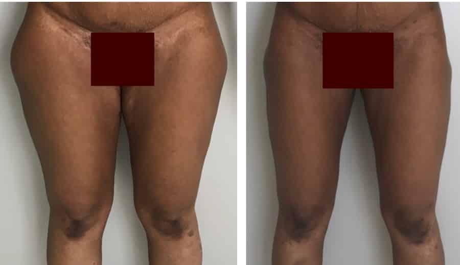 photos-chirurgie-esthetique-paris-corps-cuisses-genoux-11