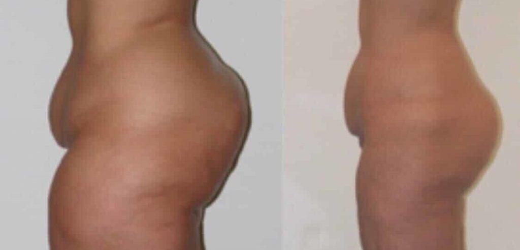 photos-chirurgie-esthetique-paris-corps-cuisses-genoux-2