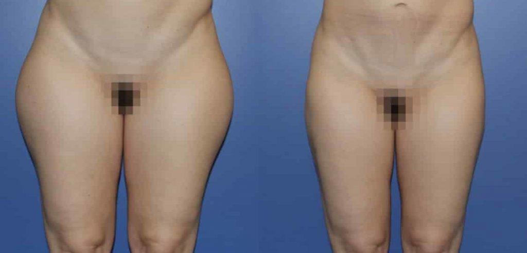 photos-chirurgie-esthetique-paris-corps-cuisses-genoux-3