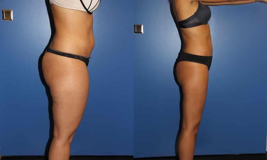 photos-chirurgie-esthetique-paris-corps-cuisses-genoux-4