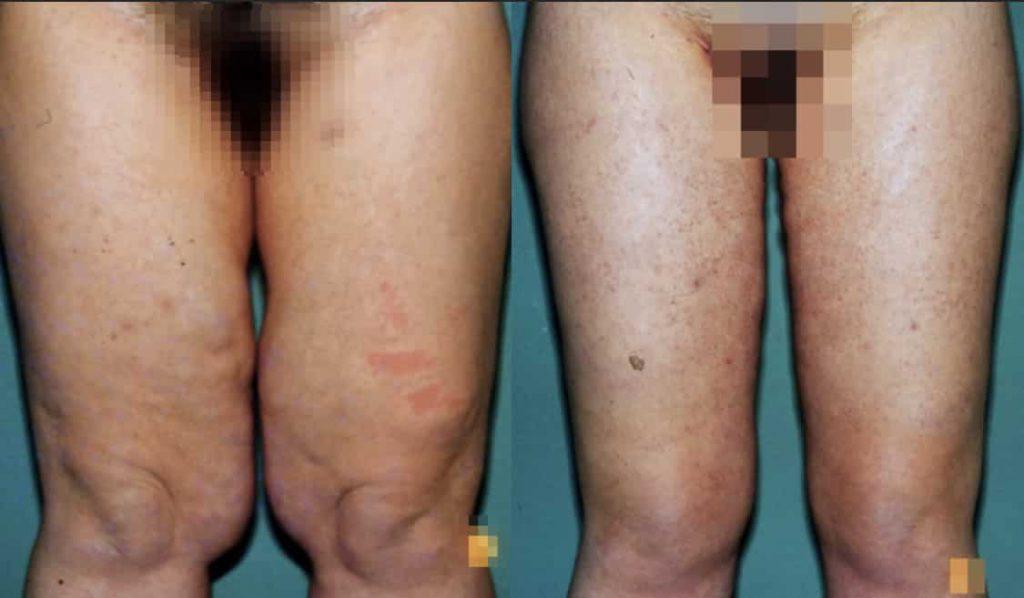 photos-chirurgie-esthetique-paris-corps-cuisses-genoux-5