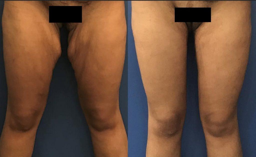 photos-chirurgie-esthetique-paris-corps-cuisses-genoux-8