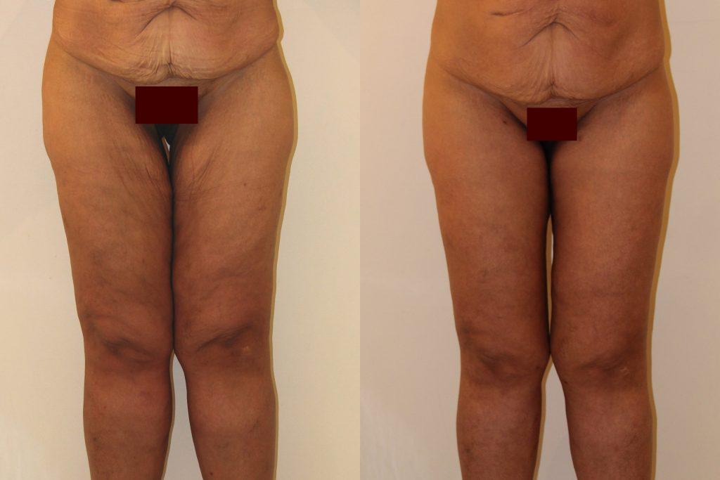 photos-chirurgie-esthetique-paris-corps-cuisses-genoux-9