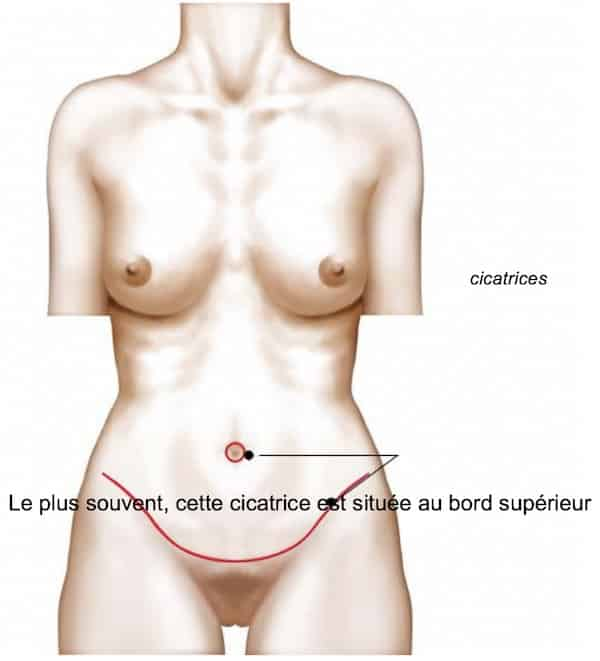 photos-chirurgie-esthetique-paris-corps-ventre-9