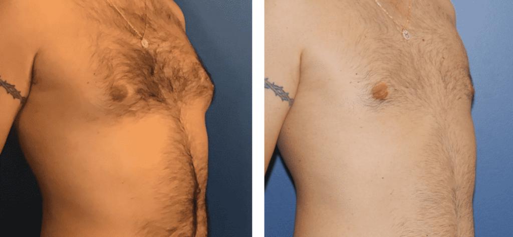 photos-chirurgie-esthetique-paris-hommes-gynecomastie-1