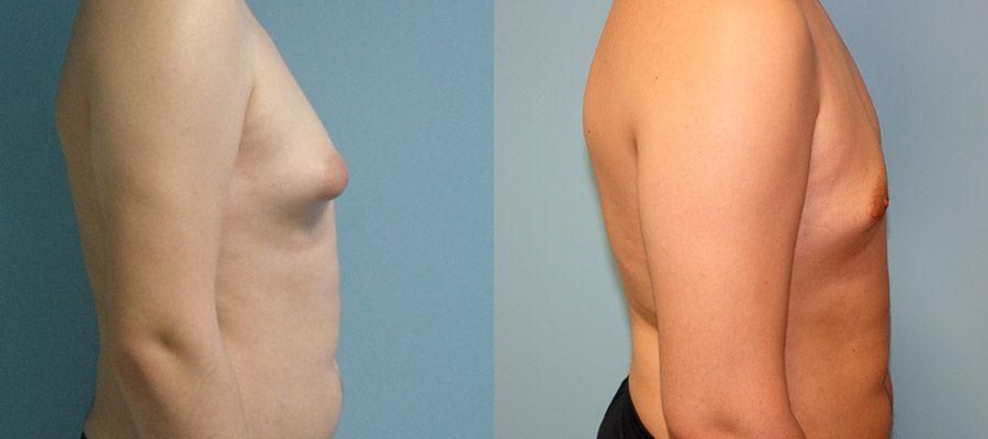 photos-chirurgie-esthetique-paris-hommes-gynecomastie-2