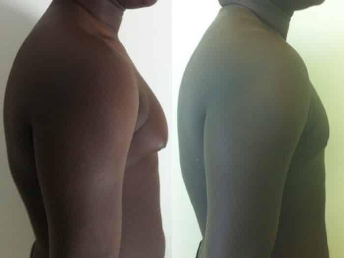 photos-chirurgie-esthetique-paris-hommes-gynecomastie-3