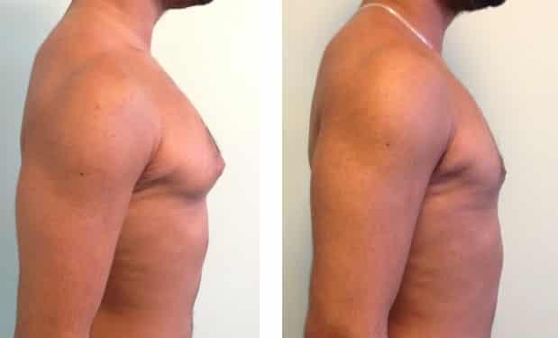 photos-chirurgie-esthetique-paris-hommes-gynecomastie-4