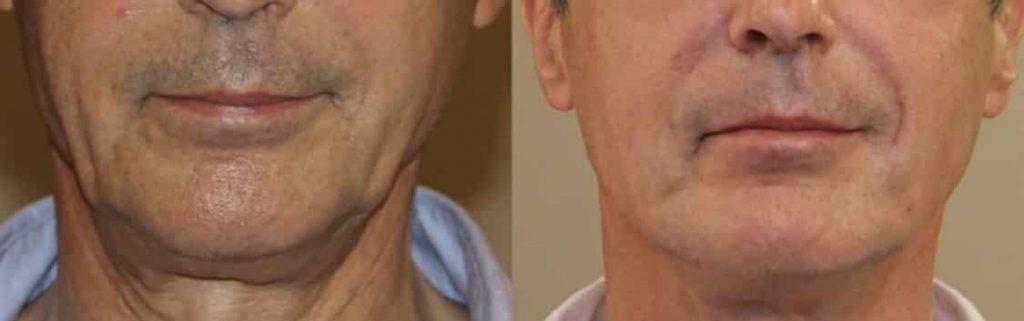 photos-chirurgie-esthetique-paris-medecine-esthetique-acide-hyaluronique-16