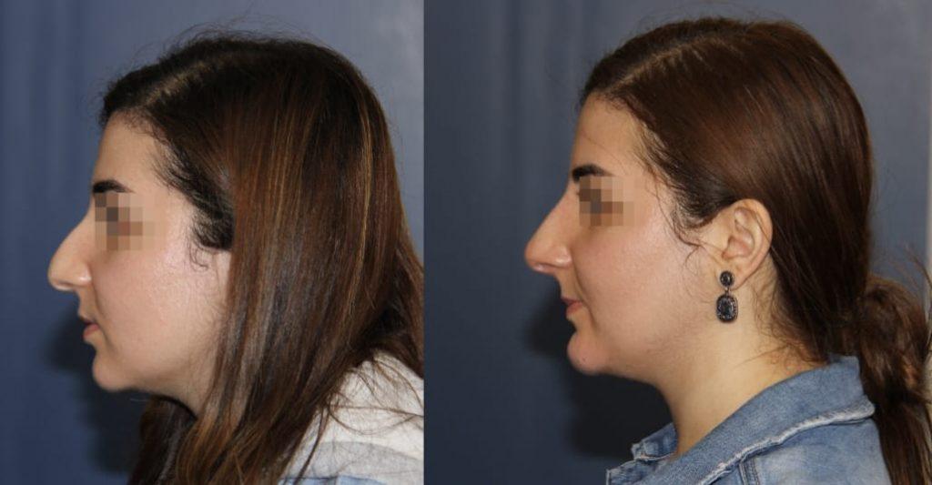 photos-chirurgie-esthetique-paris-medecine-esthetique-acide-hyaluronique-17