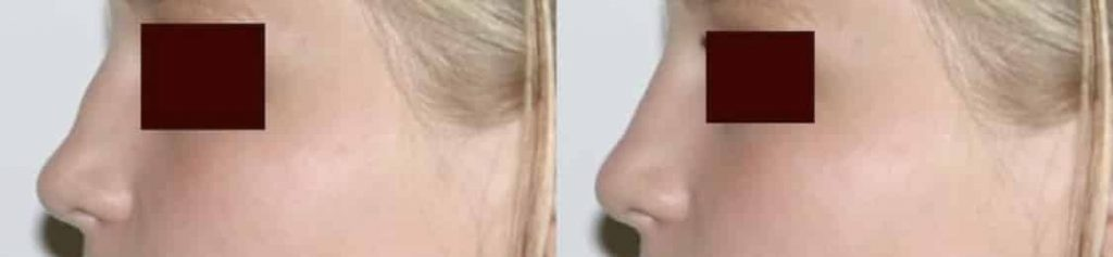 photos-chirurgie-esthetique-paris-medecine-esthetique-acide-hyaluronique-18