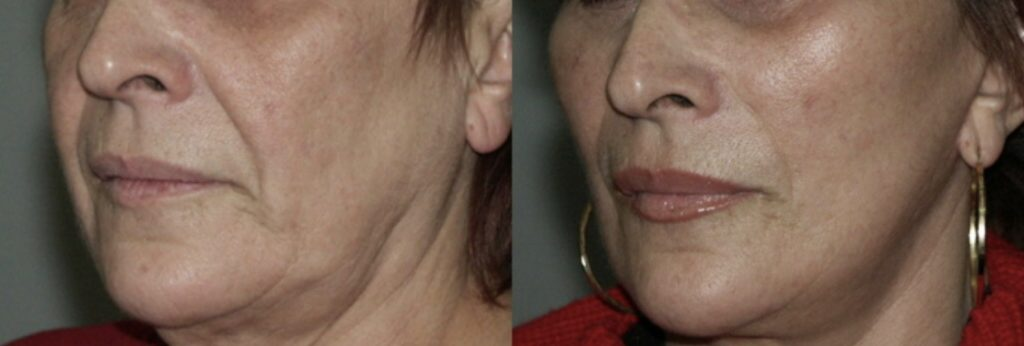 photos-chirurgie-esthetique-paris-medecine-esthetique-acide-hyaluronique-3