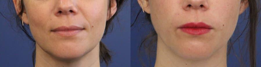photos-chirurgie-esthetique-paris-medecine-esthetique-acide-hyaluronique-4