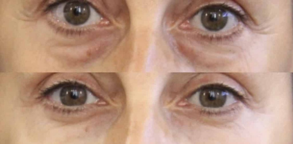 photos-chirurgie-esthetique-paris-medecine-esthetique-acide-hyaluronique-6