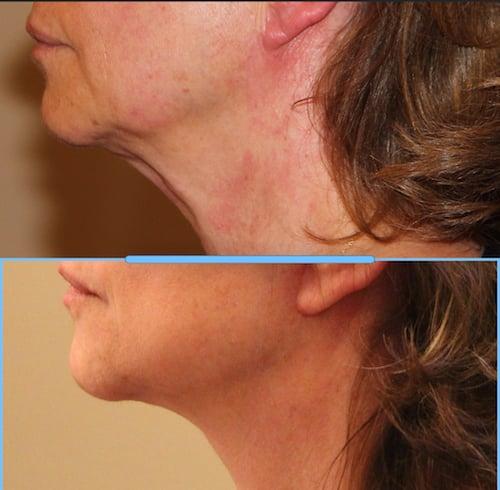 photos-chirurgie-esthetique-paris-medecine-esthetique-botox-10