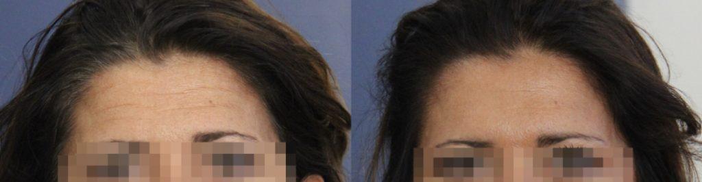 photos-chirurgie-esthetique-paris-medecine-esthetique-botox-15