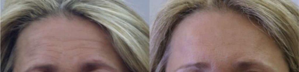 photos-chirurgie-esthetique-paris-medecine-esthetique-botox-16