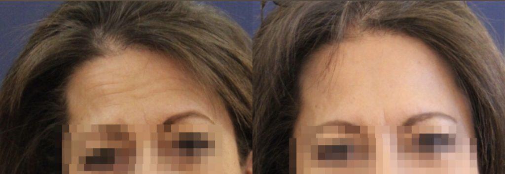 photos-chirurgie-esthetique-paris-medecine-esthetique-botox-2