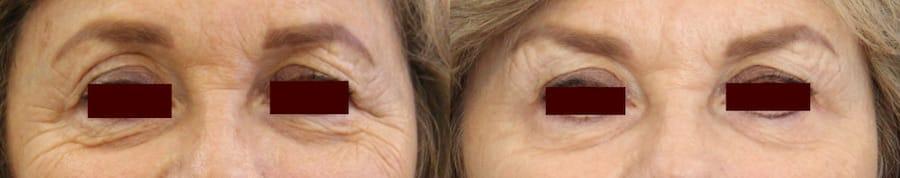 photos-chirurgie-esthetique-paris-medecine-esthetique-botox-6