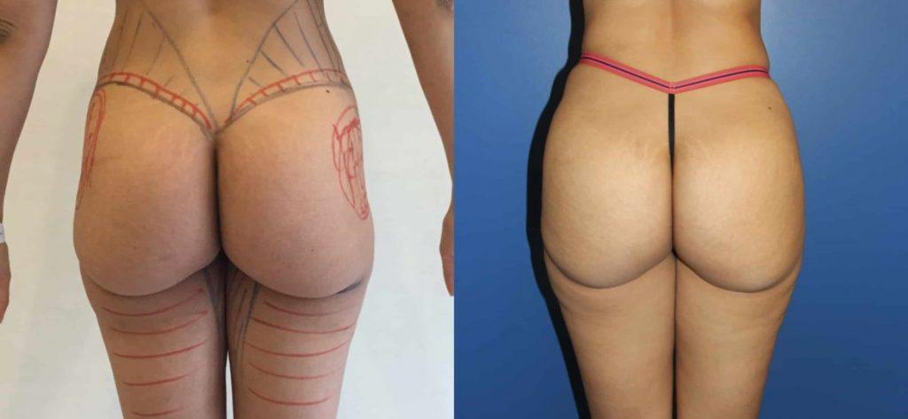photos-chirurgie-esthetique-paris-medecine-esthetique-hyacorp-2