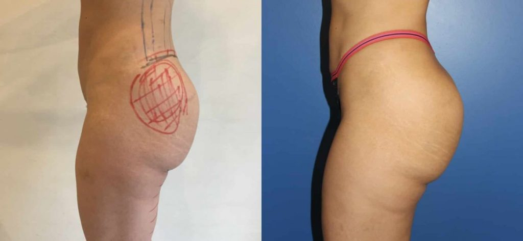 photos-chirurgie-esthetique-paris-medecine-esthetique-hyacorp-3
