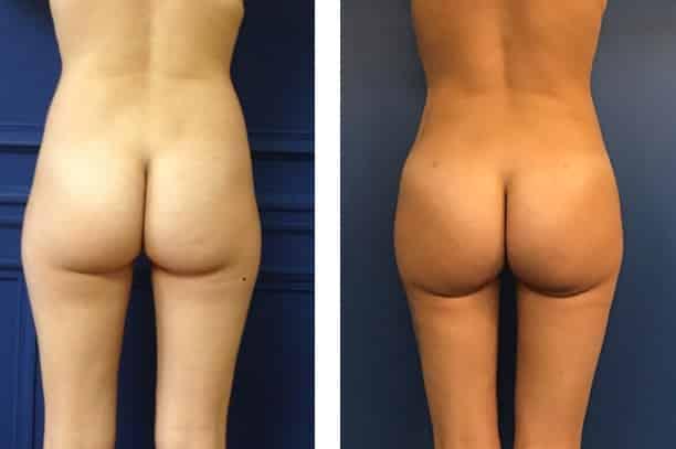 photos-chirurgie-esthetique-paris-medecine-esthetique-hyacorp-4