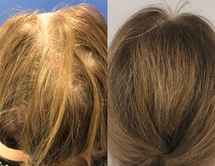 photos-chirurgie-esthetique-paris-medecine-esthetique-peau-1