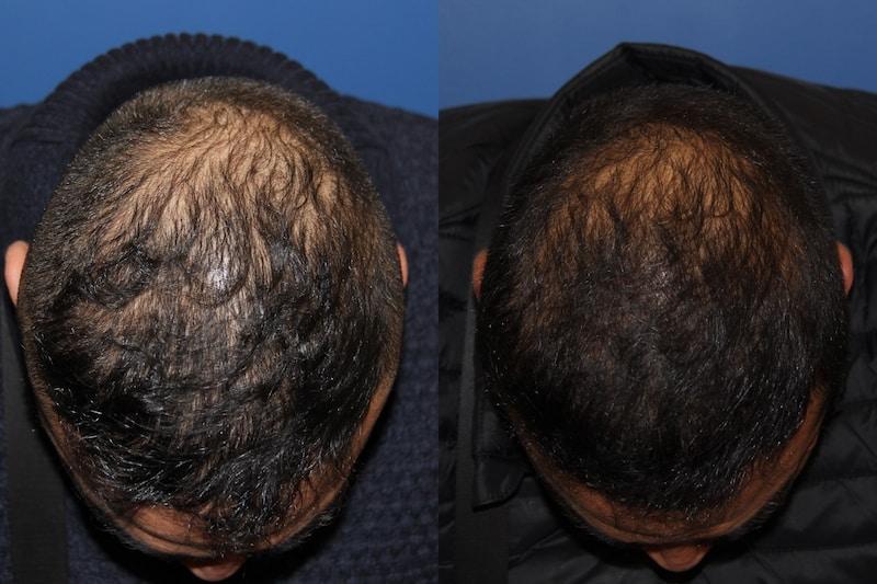 photos-chirurgie-esthetique-paris-medecine-esthetique-peau-2