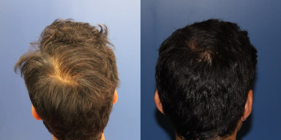 photos-chirurgie-esthetique-paris-medecine-esthetique-peau-3