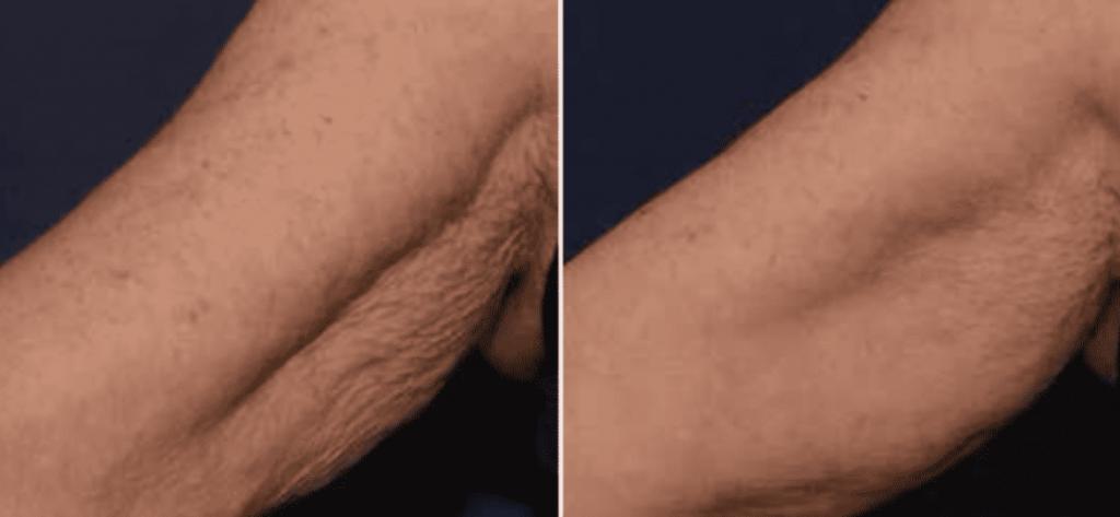 photos-chirurgie-esthetique-paris-medecine-esthetique-peau-8