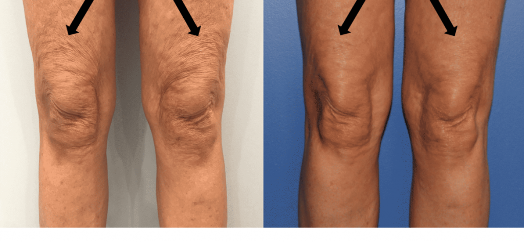 photos-chirurgie-esthetique-paris-medecine-esthetique-peau-9