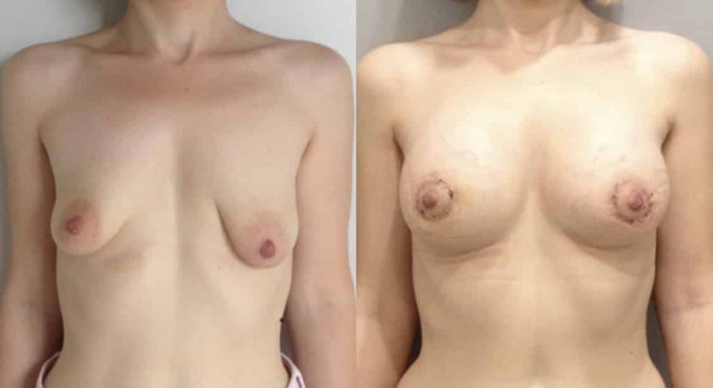 photos-chirurgie-esthetique-paris-seins-asymetrie-2