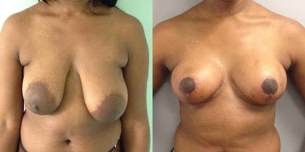 photos-chirurgie-esthetique-paris-seins-asymetrie-3