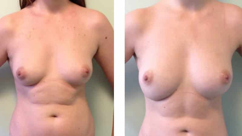 photos-chirurgie-esthetique-paris-seins-lipolifting-1