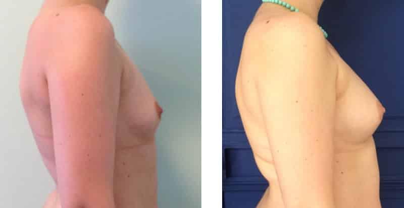 photos-chirurgie-esthetique-paris-seins-lipolifting-2