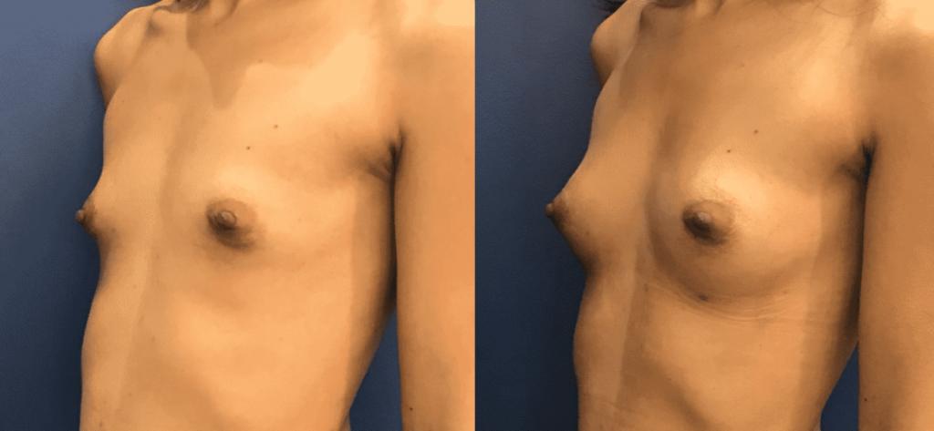 photos-chirurgie-esthetique-paris-seins-lipolifting-3