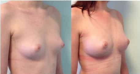 photos-chirurgie-esthetique-paris-seins-lipolifting-4