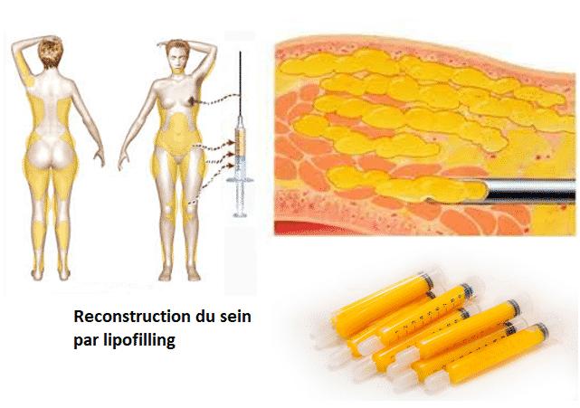 photos-chirurgie-esthetique-paris-seins-reconstruction-11