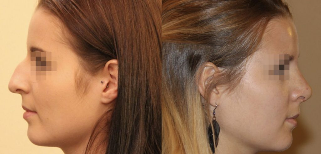 photos-chirurgie-esthetique-paris-visage-rhinoplastie-4