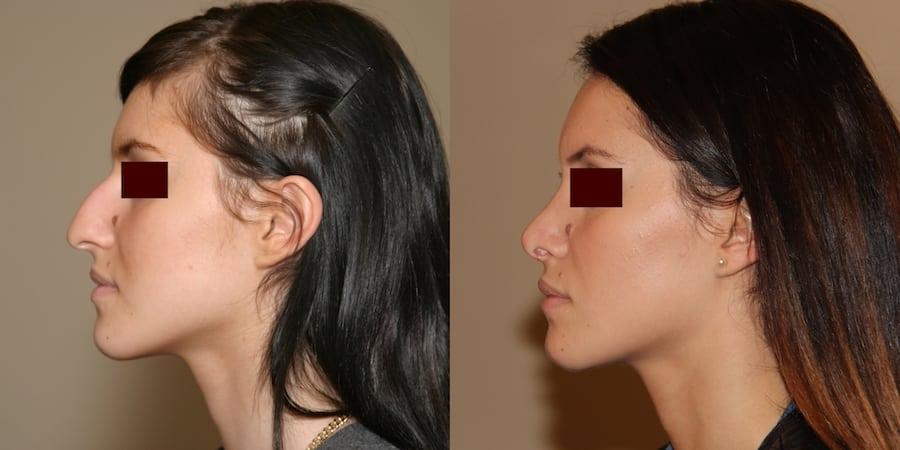 photos-chirurgie-esthetique-paris-visage-rhinoplastie-5